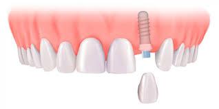 Dental Implants | Twin Lakes Dental Central Coast