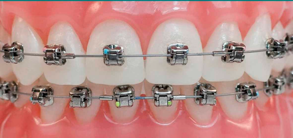 Metal Braces | Twin Lakes Dental Gorokan Central Coast