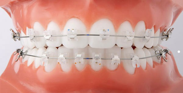 Clear Braces | Twin Lakes Dental Gorokan Central Coast