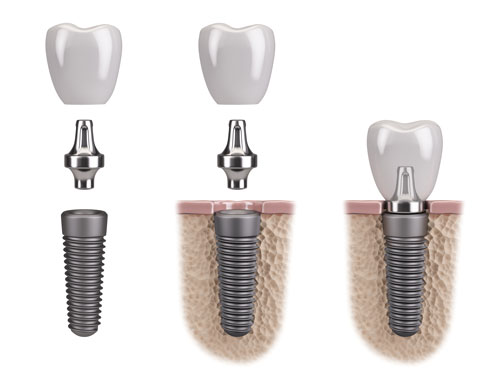 How Dental Implants Work | Twin Lakes Dental Central Coast