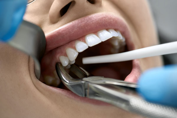 Tooth Extractions   Twin Lakes Dental Central Coast